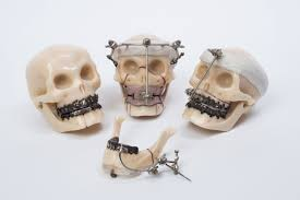 external fixator model skulls showing external fixation of facial bones east