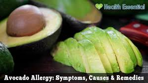 How to Deal with an Avocado Allergy