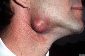 Image result for inflamed neck and face
