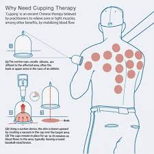 Cupping Points Chart Pdf 2019 Cupping Therapy Acupuncture