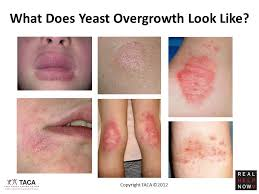 What Is Yeast Overgrowth? - Talk About Curing Autism (TACA)