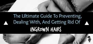how to prevent ingrown hairs