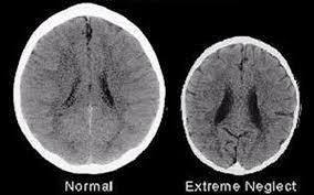 images?q=tbn:ANd9GcQI4UZPuG QdYqTMEtYHW Jr4NUUpplQbyrxrNbAM0xvp OkKZ  - Possible Life-Long Effects Of Toxic Stress On The Child.