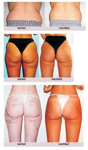 Ziel: Flacher Bauch - so bekommst du dein Fett weg!