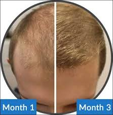 Male Pattern Baldness Cure Magnificent Could This Be The Real Cure For Baldness In Men Www