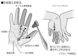閉経前後の女性に多い手のしびれ痛み手根管症候群とは 13