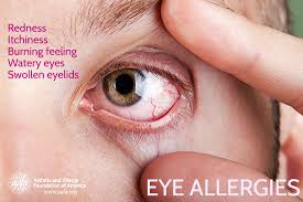 symptoms of eye allergies include redness itchiness burning watery swollen eyelids