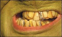 the grinch teeth. Interesting The Throughout The Grinch Teeth A