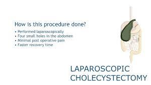 Musc Doctors Note Lap Chole Laparoscopic Surgery Musc Ddc