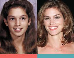 celebrities with braces before and after