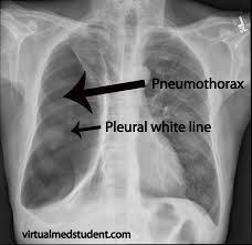 Pneumothorax X Ray Someone Bought Themselves A Chest Tube Or 2 Radiology
