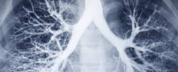 essay health and medicine hygiene wikipedia