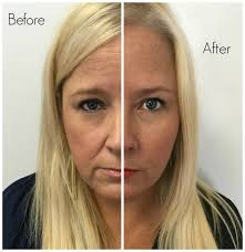 How Long Does Botox Last Every 5 Seconds People Search These Botox Juvederm