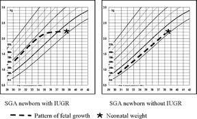 Iugr Vs Sga Growth Chart Intrauterine Growth Restriction Neonatal Aspects Springerlink