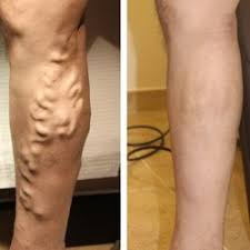 vein treatment center nyc