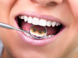 lingual braces pros and cons cost