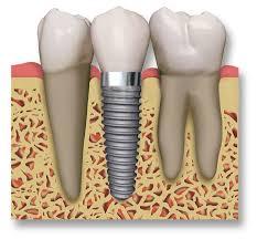 Resultado de imagen de implantes