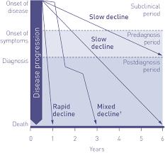 What Is A Progression Chart Ipf Disease Progression Esbriet Pirfenidone Hcp