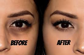 tips for removing bags under the eyes share via