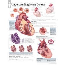 Cardiac Anatomy Chart Understanding Heart Disease Chart
