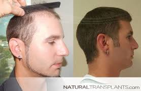 Male Pattern Baldness Cure Beauteous Male Pattern Baldness Cure Hair Transplant Photos From Natural