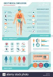 Obesity And Metabolic Syndrome Medical Infographics With