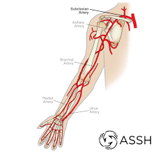 The three types of blood vessels are: Body Anatomy Upper Extremity Vessels The Hand Society