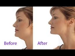 get rid of fat under chin