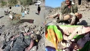 نتيجة بحث الصور عن مجزرة جديدة يرتكبها العدوان السعودي على اليمن في ضحيان ... والنتيجة 127 شهيداً وجريحاً