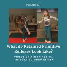 Primitive Reflexes Chart What Do Retained Primitive Reflexes Look Like