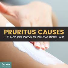 Pruritus Causes + 5 Natural Treatments for Itchy Skin – NATURACOLOGY