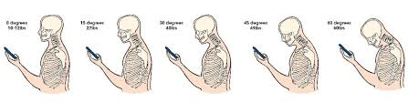 Injuring the shoulder muscles can make it difficult for you to raise a comb to your hair, let alone perform a workout or athletic activity. How To Fix Forward Head Posture Guide