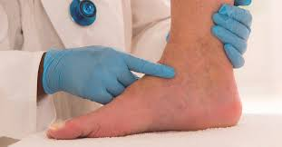 Non Pitting Edema Pitting Vs Non Pitting Causes And