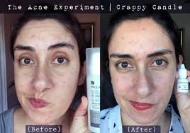 mandelic acid before after the acne experiment
