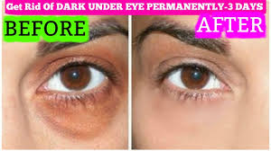 how to get rid of dark circles in 3 days permanently superprincessjo