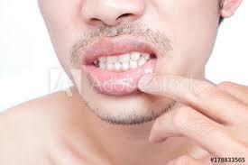 closeup of lips man problem health care