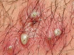 White Bumps on Scrotum or Testicle Balls, Small, Hard and Itchy ...