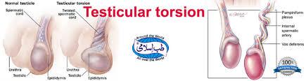 testicular torsion. testicular-torsion testicular torsion r
