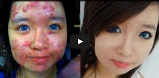how to cover up acne with makeup how to cover up acne with the best concealer recently a you