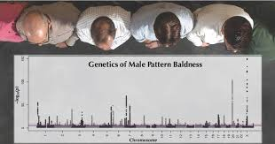 Male Pattern Baldness Genetics