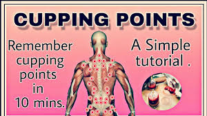 Hijama Cupping Points Chart Cupping Therapy Points Chart Bedowntowndaytona Com