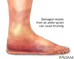 ankle pain information mount sinai
