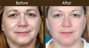 sagging jowl loose cheeks fine wrinkles under eye area laugh lines neck area tightening abdomen upper arm tightening improve skin texture