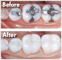Dental Inlay Inlays Onlays Alvarez Dentistry