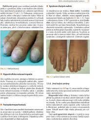 Kožní Změny U Interních Onemocnění Pdf