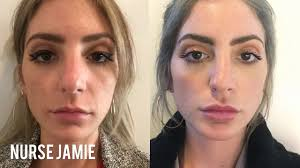 before and after micro needling nurse jamie