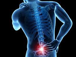 free image Lumbar spondylosis साठी इमेज परिणाम