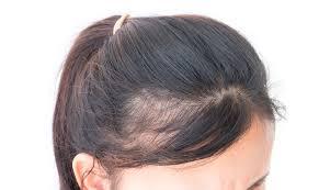 女性の薄毛に対してミノキシジルは効果があるかaga薄毛の治療は