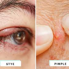 left photo is a stye middle is a pimple right photo is milia