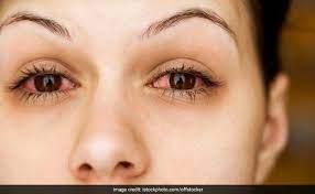 allergic conjunctivitis on the rise 6